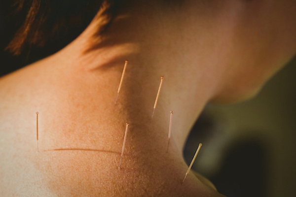 aiguilles acupuncture